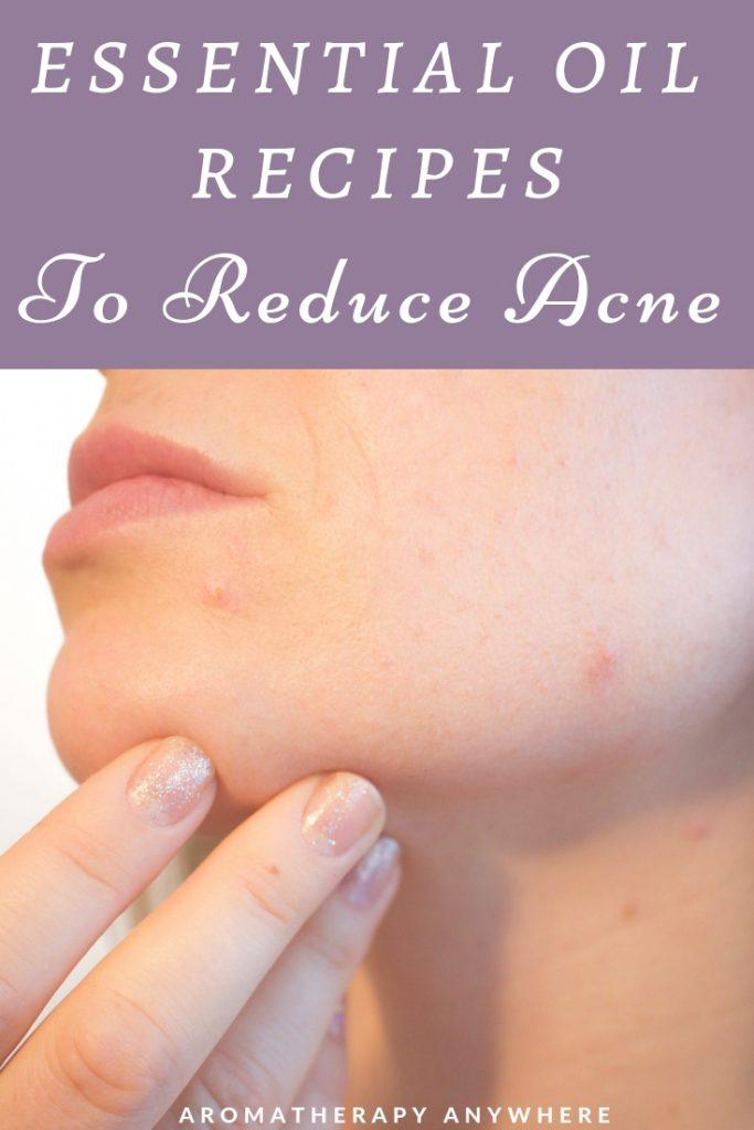 Essential Oil Recipes for Acne